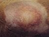 dermatitis2